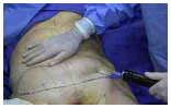 VASER Liposuction Vs. Traditional Lipo